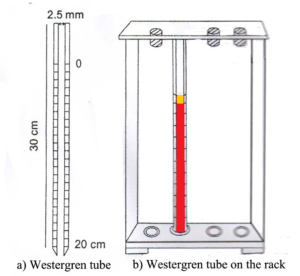 Erythrocyte Sedimentation Rate