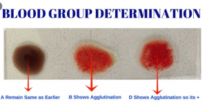 blood group typing test