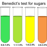 Benedict's Test: Estimation Glucose in urine