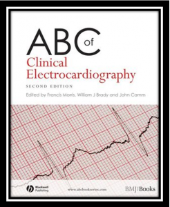 abc of clinical electrocardiography pdf