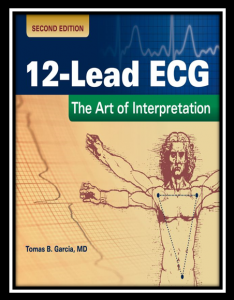 12-lead ECG: the art of interpretation pdf
