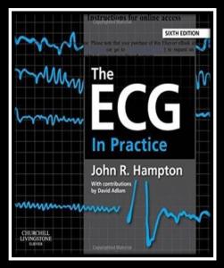 ECG in practice pdf