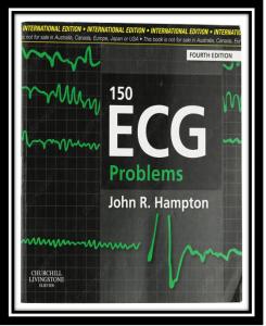 150 ecg problems pdf