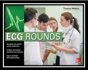 ecg round pdf