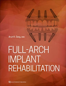 Full Arch Implant Rehabilitation PDF